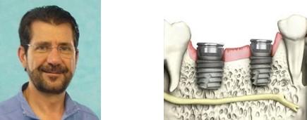 curso-implantes-cortos-huelva-aacib